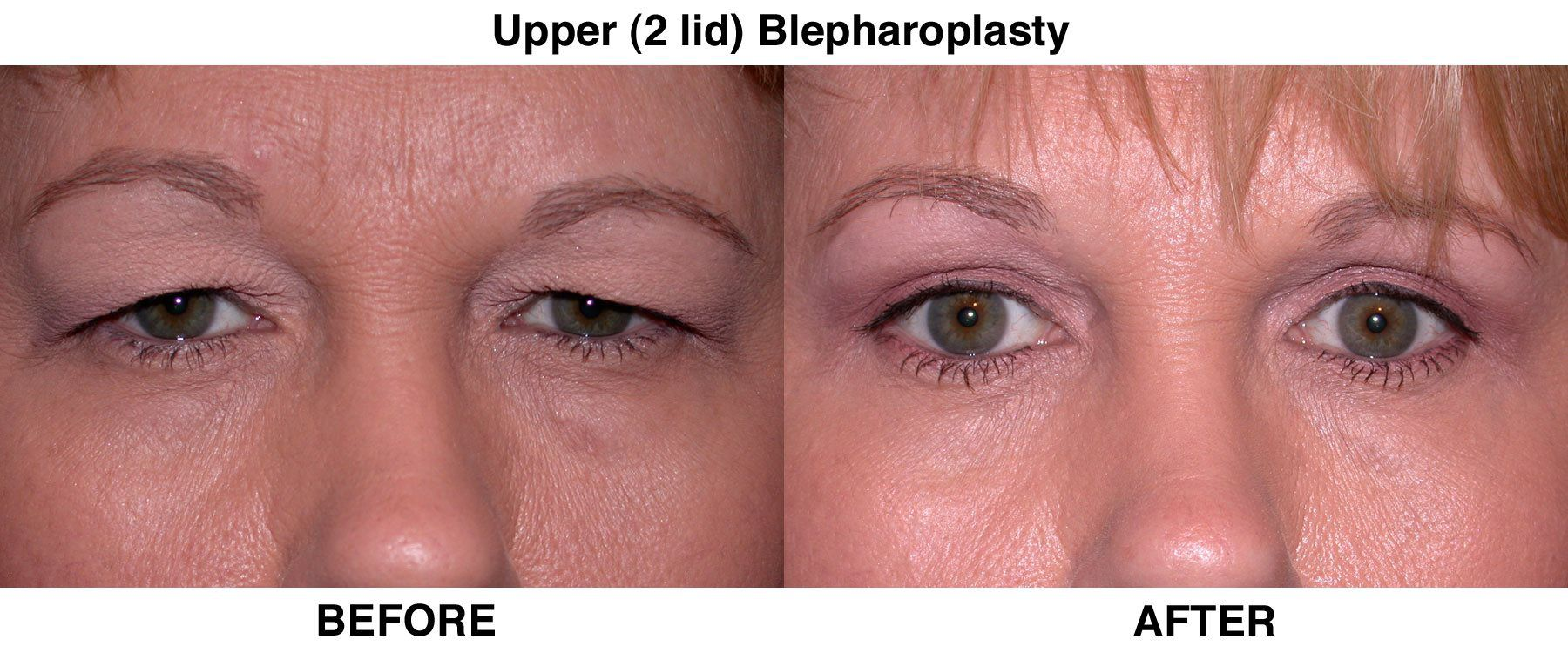 What Is Blepharoplasty advise
