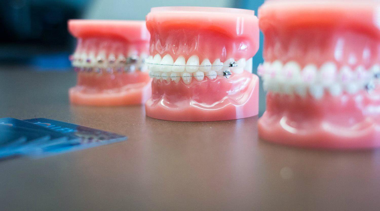 Retention Treatment - Jolley Orthodontics
