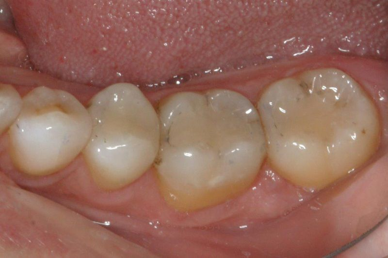 Post op instructions smilin dental after tooth colored fillings solutioingenieria Images