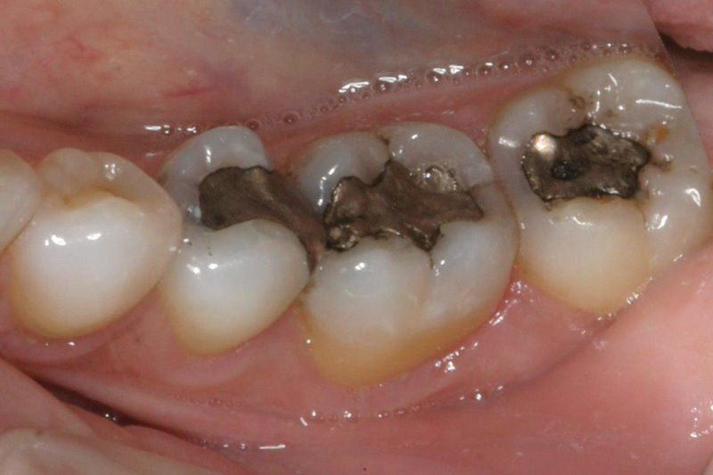 Post op instructions smilin dental before tooth colored filling solutioingenieria Images